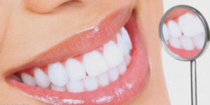 Bọc răng sứ là xu thế nha khoa thẩm mỹ, hiện đại, an toàn, chất lượng