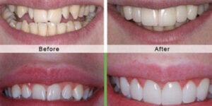 Lựa chọn răng sứ với chất lượng, giá cả răng sứ phù hợp